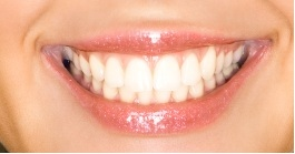 close-up of patient's smile after getting tooth-colored fillings