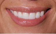 close-up of patient's smile after getting a dental crown